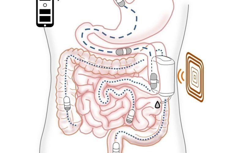 Robot Could Operate a Docking Station Inside the Gut